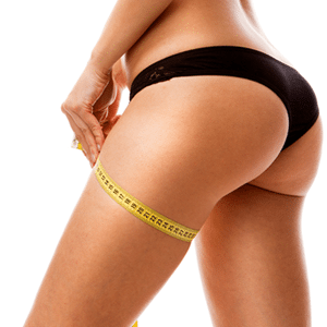 7 Things You Need to Know About Cellulite