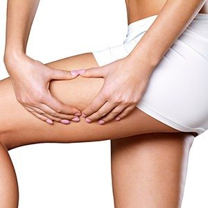 """6 Ways to Say """"See Ya"""" to Cellulite"""