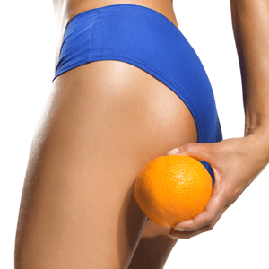 11 Best Foods for Cellulite Reduction