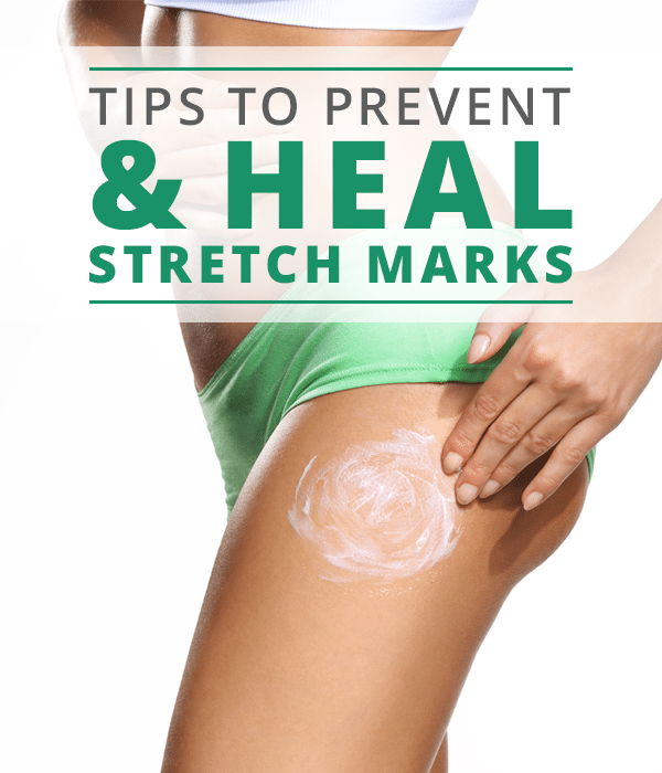 How to Heal Stretch Marks