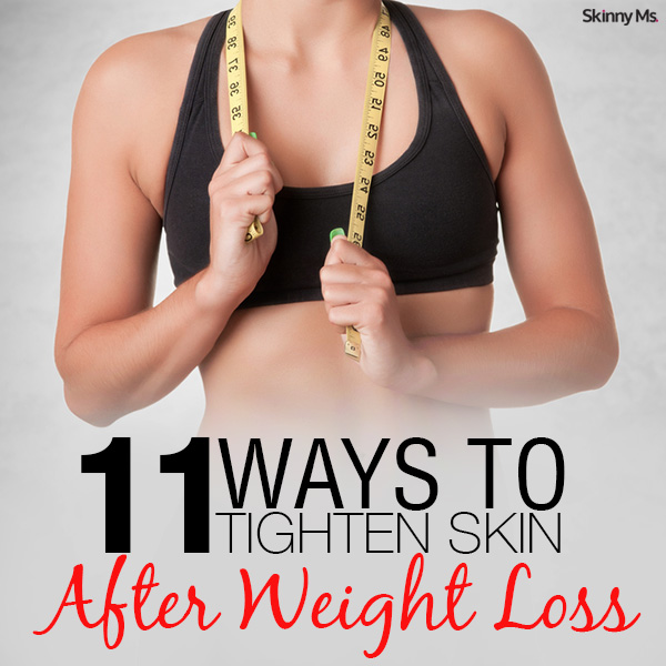 11 Ways To Tighten Skin After Weight Loss