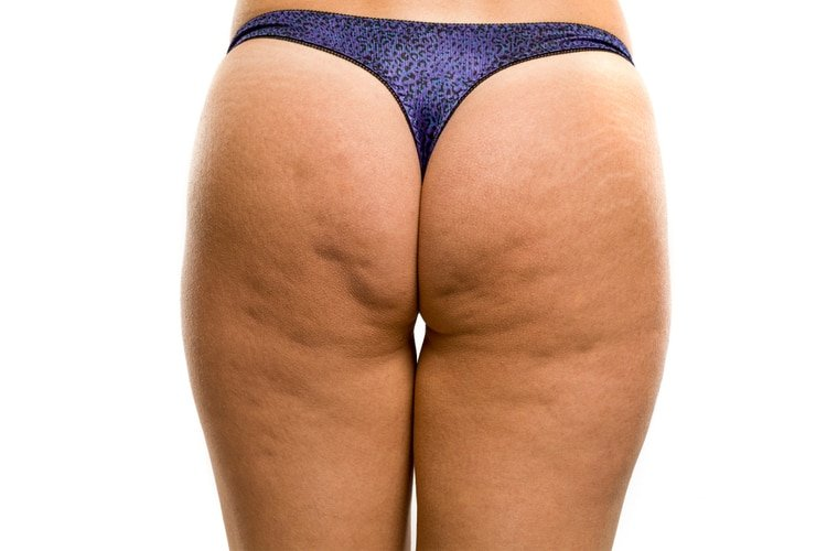 Get rid of butt cellulite with this 15-minute butt tonight workout