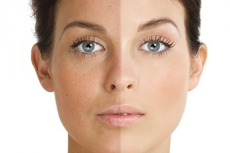 4 DIY Tricks To Lighten Dark Spots
