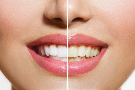 DIY Natural Teeth Whitener